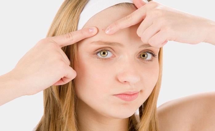 Tuo figlio soffre di acne giovanile? Rivolgiti al dermatologo