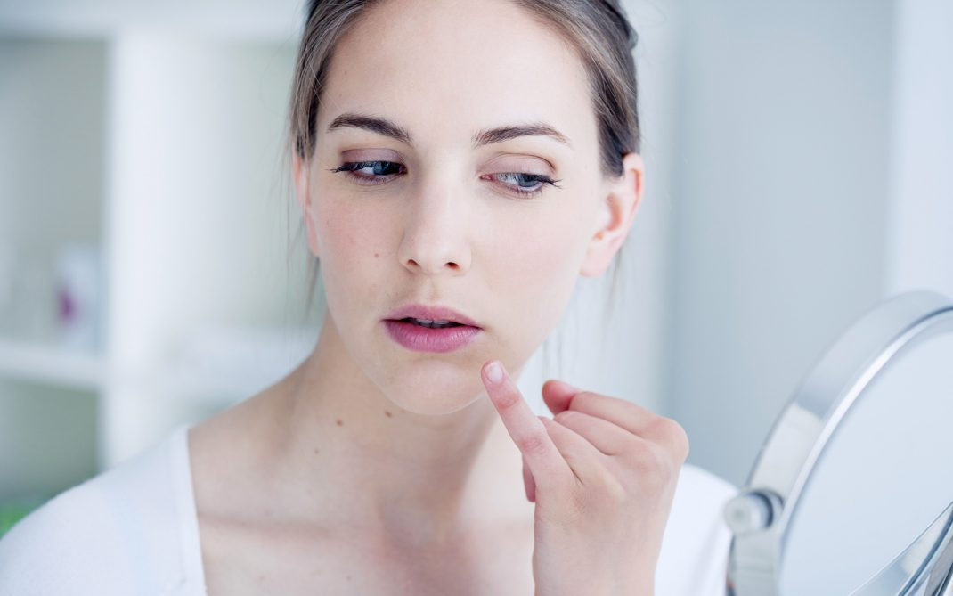 Acne e sole: i raggi di sole aiutano o peggiorano la pelle affetta da acne?