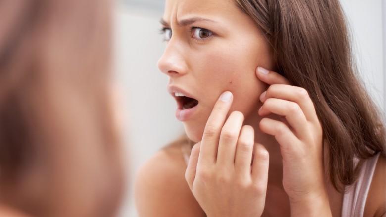 Basta nascondersi! Curiamo l'acne con Kleresca® e la Terapia Biofotonica
