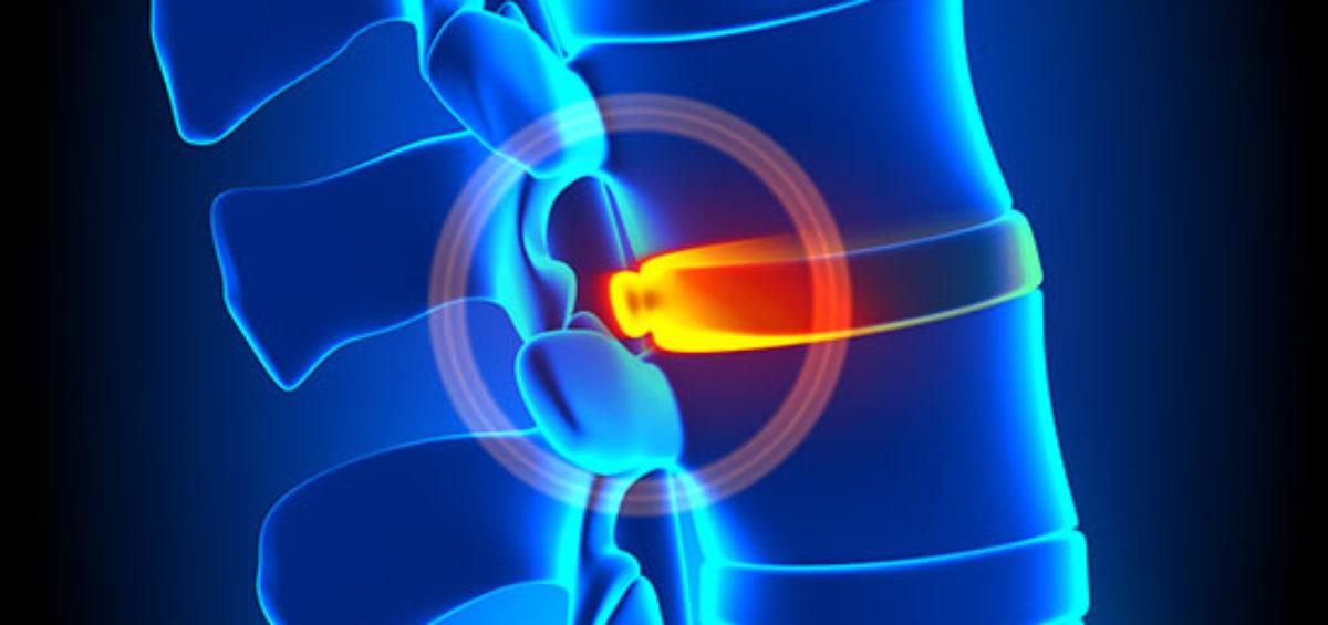 Dolore acuto nell'ernia del disco: l'ozono e le altre terapie ambulatoriali