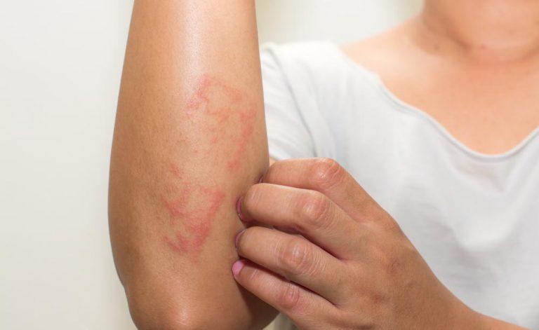 Psoriasi: di cosa si tratta? Parliamone con il Dermatologo