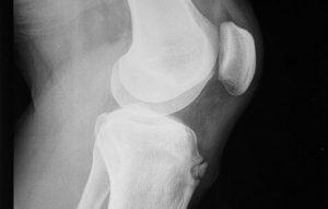 Radiografia al ginocchio sotto carico