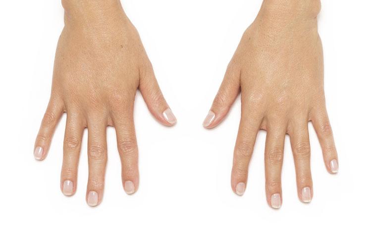Ringiovanire le proprie mani con Radiesse