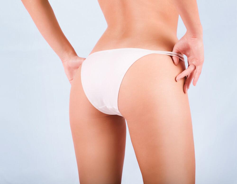 Combattere la cellulite con la Carbossiterapia