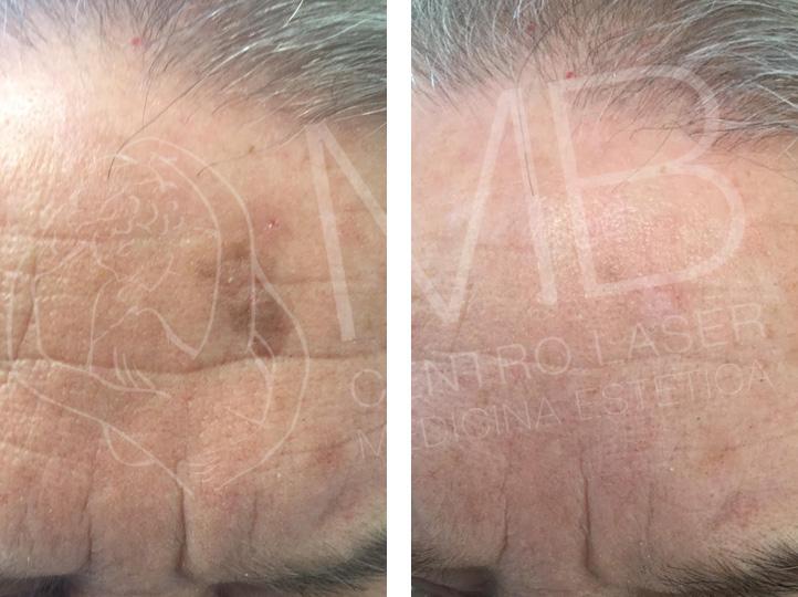 Trattamenti laser Cheratosi seborroiche