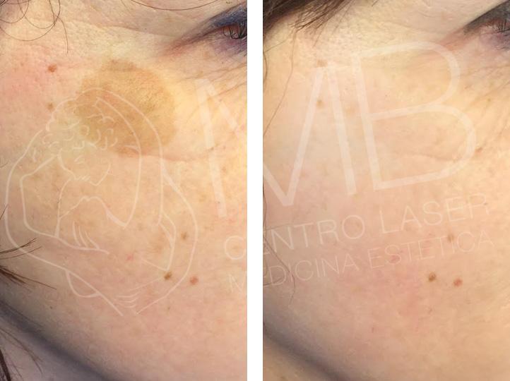 discromie Macchie della pelle thiene