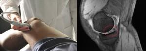 Il ruolo dell'ecografia articolare nella diagnosi dell'artrite