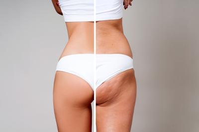 Addio alla cellulite con la carbossiterapia