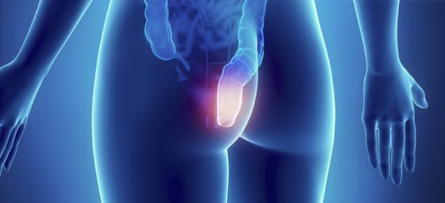 Emorroidi: come prevenirle e trattarle?
