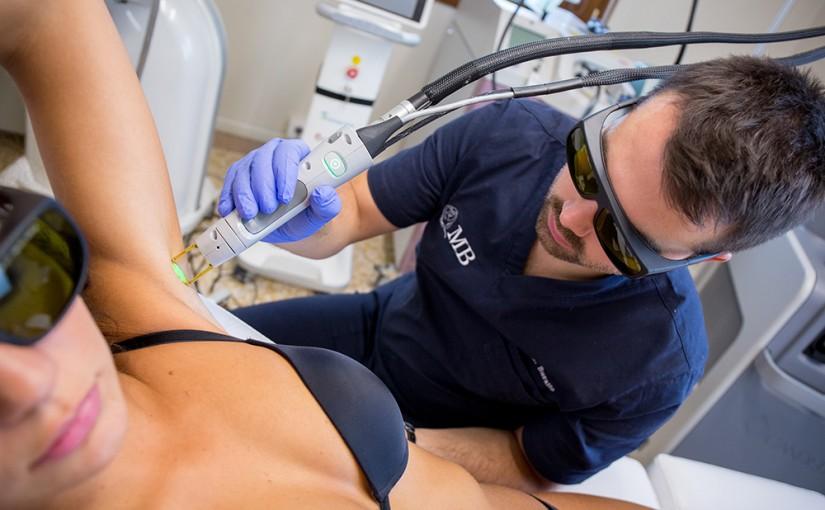 Epilazione laser: le 5 domande più comuni sul trattamento