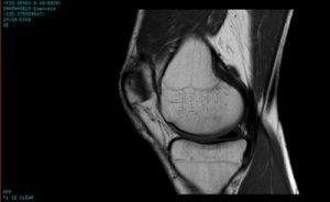 La risonanza magnetica al ginocchio