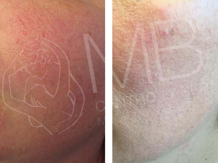 laser vascolari couperose vicenza
