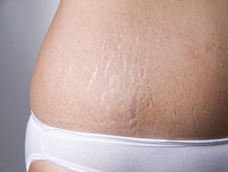 Smagliature: eliminarle con il trattamento laser