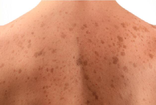 Macchie della pelle, quali sono le cause e come trattarle