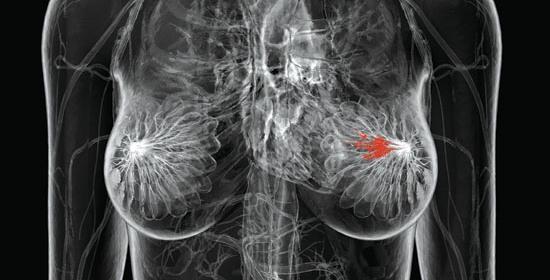 Mammografia 3D: la nuova frontiera della prevenzione