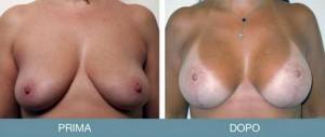 intervento seno