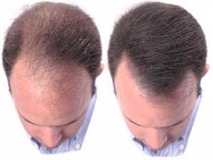 Alopecia (calvizie): la cura arriva del nostro sangue