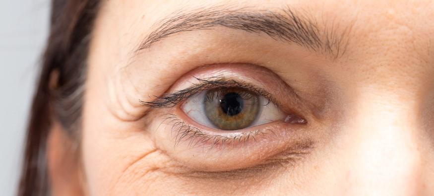Come sconfiggere le occhiaie con la biorivitalizzazione
