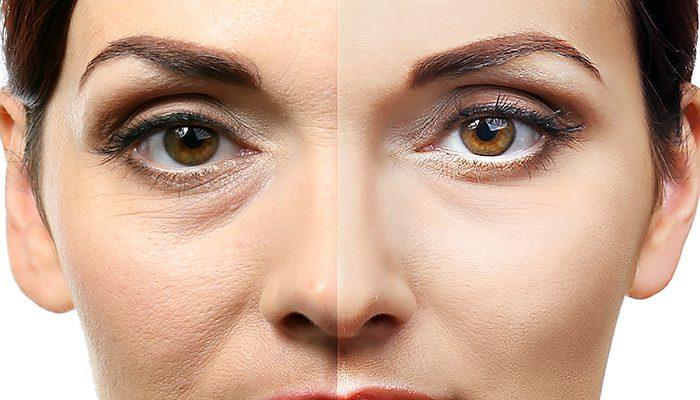 Addio alle occhiaie con la carbossiterapia