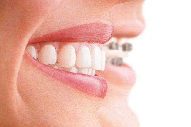 Occlusione dentale, dolori cervicali e postura