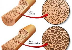 Osteoporosi e Densitometria Ossea
