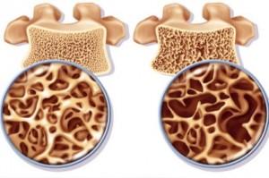 Osteoporosi sintomi: come riconoscerla