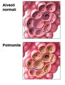 polmonite come capire