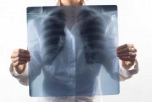 polmonite cure
