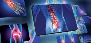 Le Radiografie a Thiene si fanno digitali