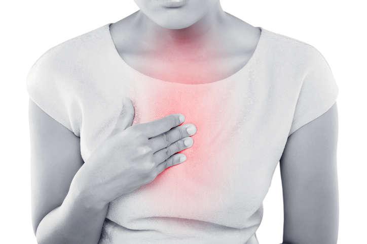 Reflusso gastroesofageo: sintomi e diagnosi