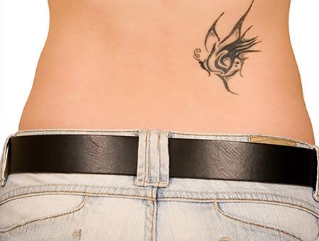 Rimozione tatuaggi: come farlo e perché?