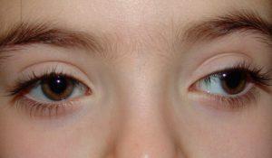 Oculistica pediatrica e strabismo: quando effettuare una prima visita?