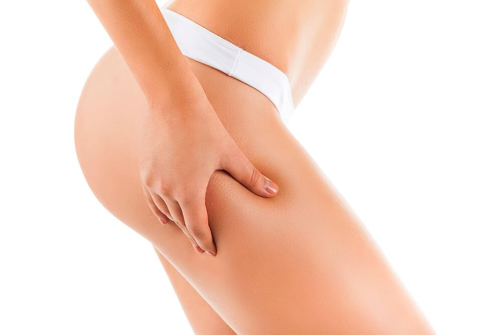 La Carbossiterapia: una preziosa alleata contro la cellulite