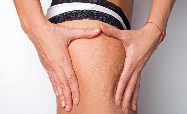 Mesoterapia: elimina la cellulite e ridona tonicità alla pelle