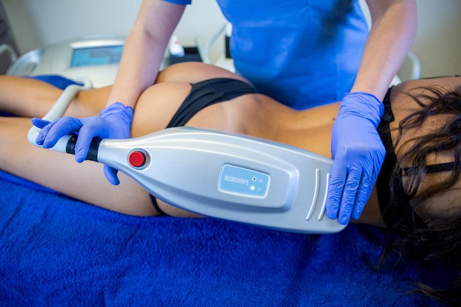 trattamento corpo criolipolisi thiene