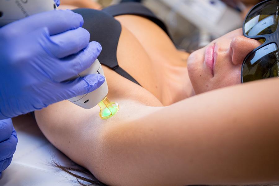 trattamento epilazione