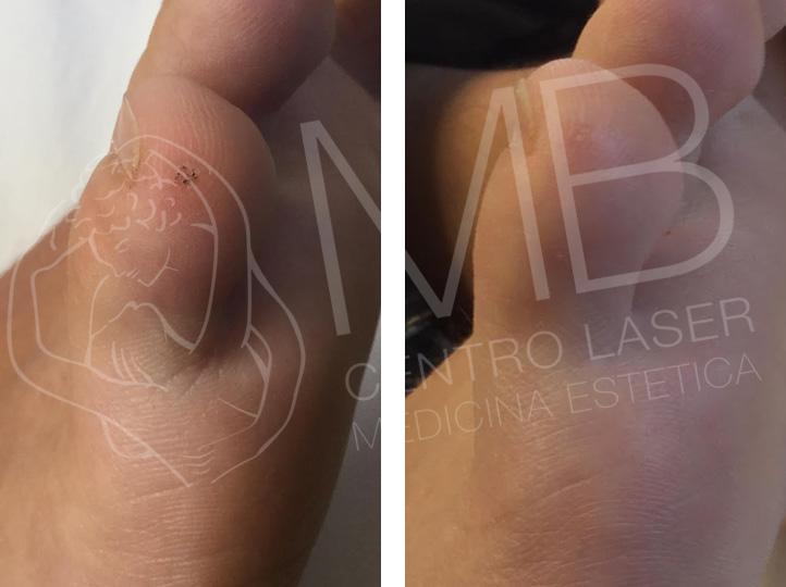 trattamento laser Verruche thiene