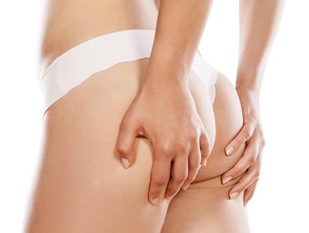 L'efficacia della Velasmooth-Pro nel rimodellamento del corpo